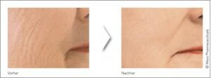 Skinbooster Vorher/Nachher